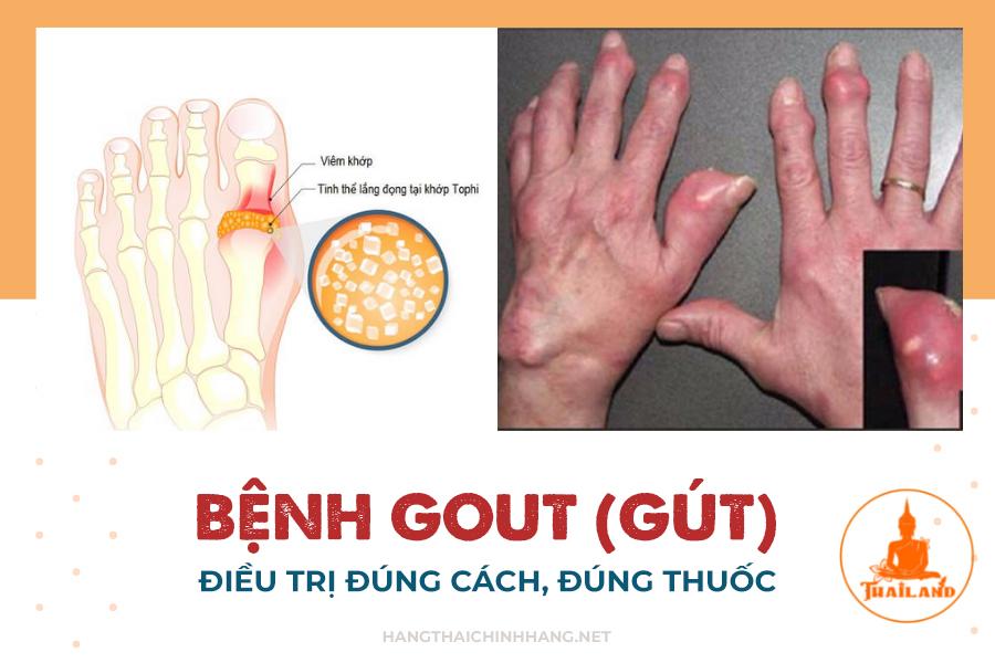 Bệnh Gout: Cần điều trị đúng cách, đúng thuốc