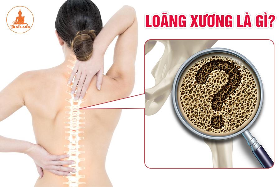 Bệnh loãng xương là gì?