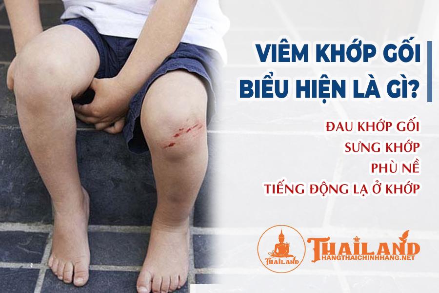 Biểu hiện bệnh viêm khớp gối ở trẻ em