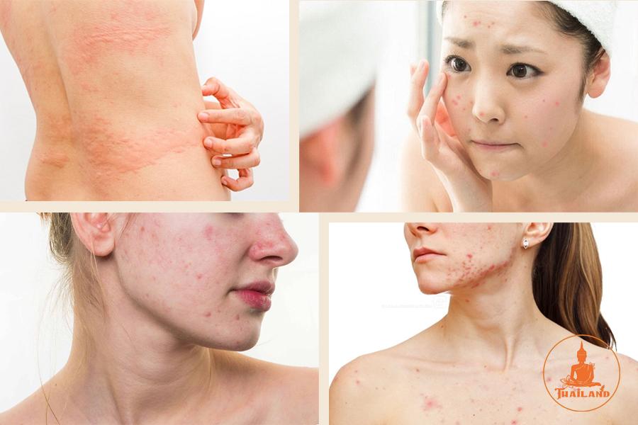 Biểu hiện dị ứng da