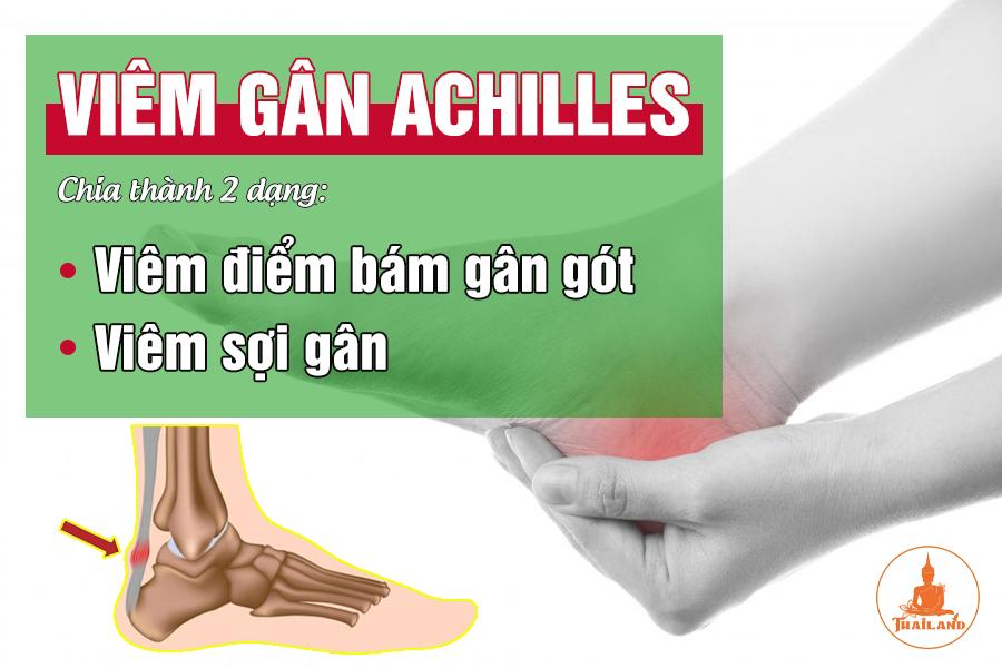 Các dạng viêm gân gót chân