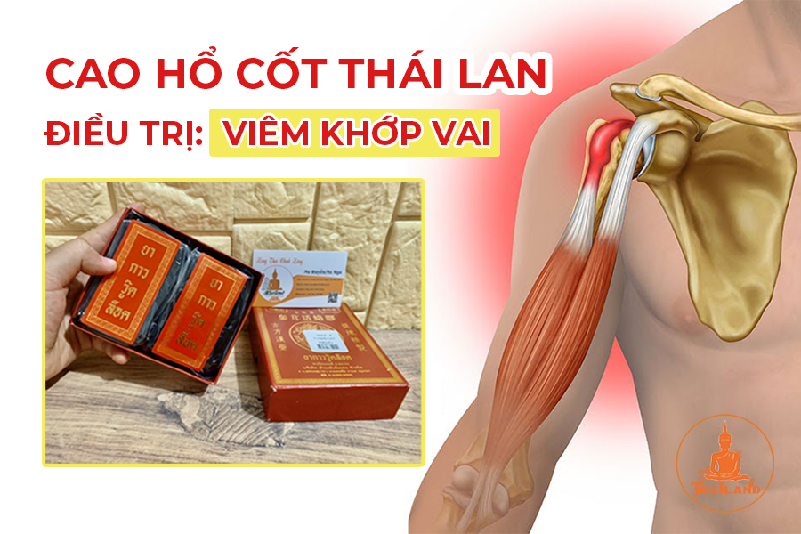 Cao hổ cốt Thái Lan – điều trị viêm khớp vai hiệu quả