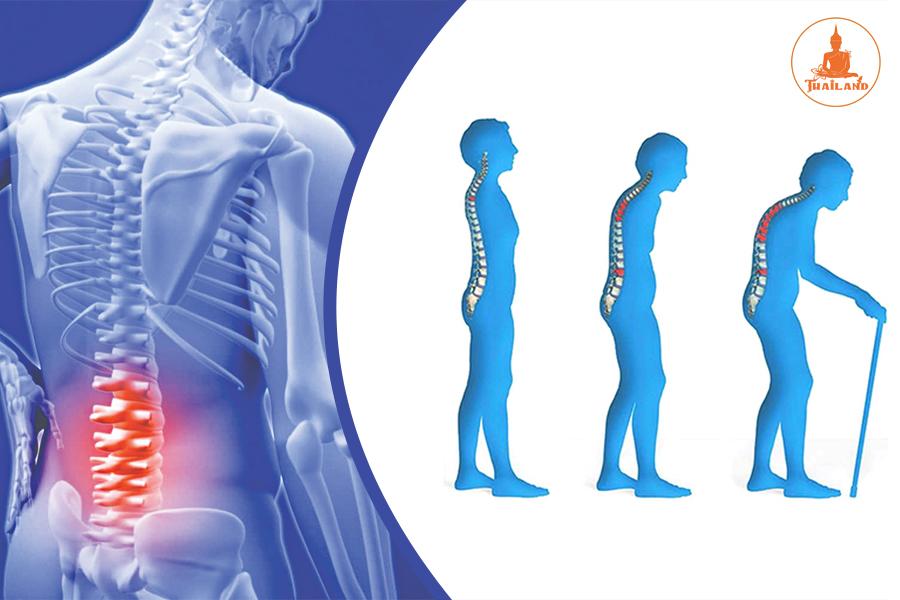Dấu hiệu bệnh loãng xương