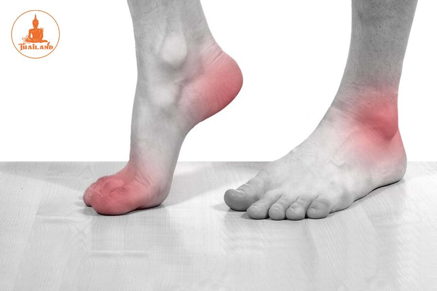 Điều trị viêm gân gót chân