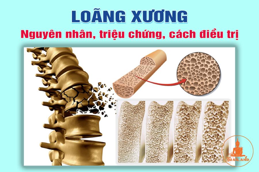 Loãng xương là gì?