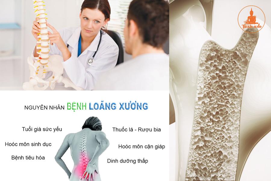 Nguyên nhân bệnh loãng xương