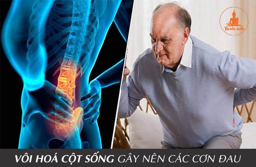 Nguyên nhân gây vôi hóa đốt sống lưng
