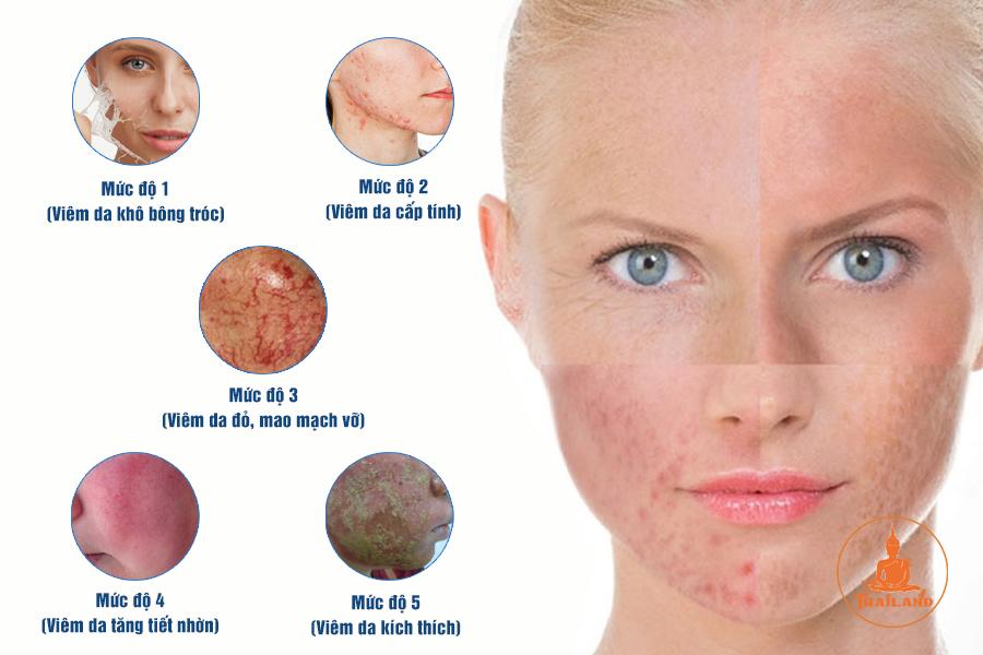 Nhận biết da bị nhiễm corticoid