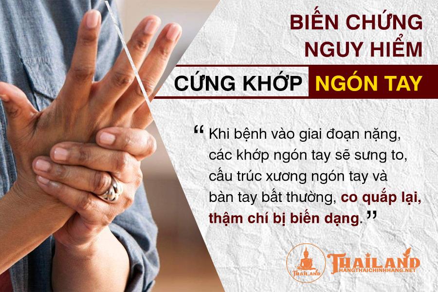 Cứng khớp ngón tay là triệu chứng gì?