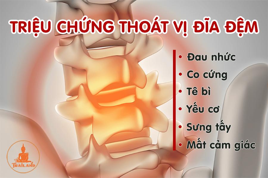 Triệu chứng bệnh thoát vị đĩa đệm thắt lưng